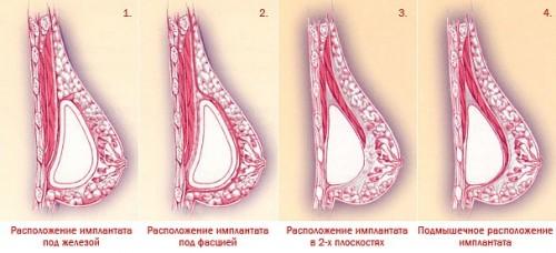 Варианты доступа при увеличении груди